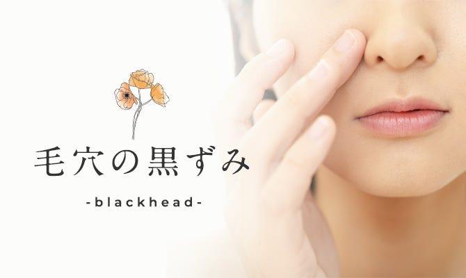 汚れ の の 鼻 毛穴 皮膚科医に聞く!いちご鼻の黒ずみ毛穴を綺麗にする方法
